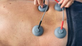 4K μήκος σε πόδηα βράσης UHD της ηλεκτρο ιατρικής διαδικασίας υποκίνησης με τον καυκάσιο αρσενικό ανώτερο ασθενή απόθεμα βίντεο