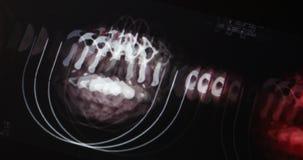 4k医生学习分析疾病的顶头宠物ct头骨脑部扫描X光片 股票视频