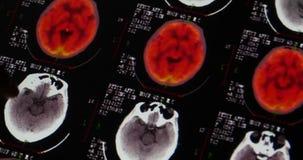 4k de artsen bestuderen de hoofd huisdier-Ct film van de het aftastenröntgenstraal van schedelhersenen voor analyseziekte stock video