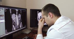 4K de vermoeide arts steeg zijn glazen op terwijl het zitten bij de monitors met een Röntgenstraalonderzoek stock video
