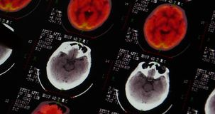 4k Doctors study head PET-ct skull brain scan X-ray film for analysis disease. stock video