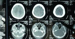 4k lekarki studiują czaszka móżdżkowego Radiologicznego film dla analizy zdrowie medyczny szpital zbiory wideo