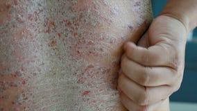 4K se ferment vers le haut des mains de tir de l'homme rayant la blessure irritante patiente d'éraflure de psoriasis de dermatite banque de vidéos