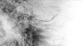 4k sottraggono le nuvole appannano il fumo della spruzzata, fondo delle particelle dei fuochi d'artificio del vapore del gas illustrazione di stock