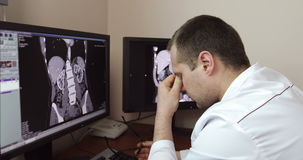 4K The tired doctor took off his glasses while sitting at the monitors with an X-ray examination.