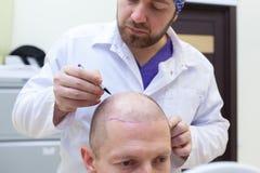 Kaalheidsbehandeling Pati?nt die aan haarverlies lijden in overleg met een arts Voorbereiding voor haartransplantatie stock fotografie