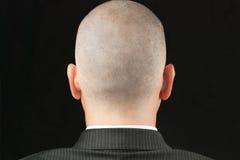 Kahler Mann in der Klage von hinten Stockbild