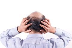 Kale zakenman met zijn hoofd op scalp mening van erachter met wh stock afbeelding