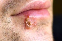 Kalte Wunden (Herpes labialis) Stockfotografie