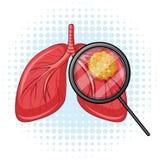 Kanker in menselijke longen vector illustratie