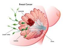Kanker van de borst Financier de strijd, vind een behandelings postzegel Royalty-vrije Stock Fotografie