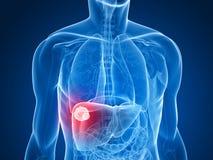 Kanker van de lever stock illustratie