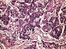 Kanker van de lever van een mens Stock Afbeelding