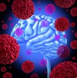 Kanker van hersenen stock illustratie