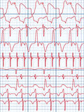kardiogram ilustracja wektor