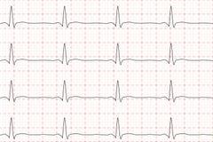 Kardiogram av hjärtatakten ECG på diagrampapper också vektor för coreldrawillustration Royaltyfria Bilder