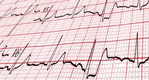 Kardiogram CU Zdjęcie Stock