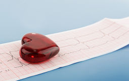 Kardiograma pulsu ślad i serca pojęcie dla sercowonaczyniowego medycznego egzaminu Fotografia Royalty Free