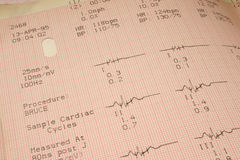 Kardiologische Testergebnisse Lizenzfreie Stockfotos