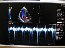Kardiovaskuläres Überwachungsgerät der Farbe, Herz Diagramm lizenzfreies stockfoto