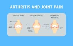 Karikatur-Arthritis-und Gelenkschmerzen-Konzept-Karte Vektor vektor abbildung