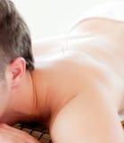 Kaukasische mens die een acupunctuurbehandeling ontvangt Royalty-vrije Stock Foto