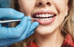 Free Keep Calm And Smile. Teen At The Dental Office. Dentist Examining Girl`s Teeth In Clinic. Royalty Free Stock Image - 144171856