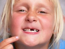 Kein Zahn lizenzfreie stockfotos