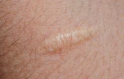 Keloid scar on skin background. Closeup of keloid scar on skin background royalty free stock images