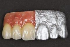 Keramische vordere Zähne und Gummis stockbild