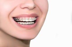 Keramische zahnmedizinische Klammer-Zähne Nahaufnahme-weibliches Lächeln Stockbild