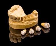 Keramiska tand- implantat Arkivbilder