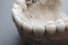 Keramiska tand- implantat på gipsorienteringsnärbild Royaltyfri Foto