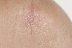 Keratinizing łuskoskórej komórki carcinoma skóra fotografia royalty free