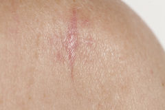 Keratinizing squamous cell carcinoma of the skin Royalty Free Stock Photography