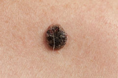 Keratinizing squamous cell carcinoma of the skin royalty free stock images