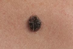 Skin cancer in men. Keratinizing squamous cell carcinoma of the skin on the back of an elderly person. Hercornic squamous cell carcinoma. Skin cancer in men Stock Images