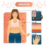 Keratinvektorillustration Hår flår och spikar exempel på kvinna vektor illustrationer