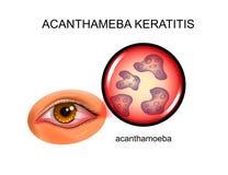 Keratitis Acanthameba επιπεφυκίτιδα απεικόνιση αποθεμάτων