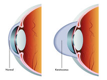 Keratoconus vektor illustrationer