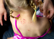 Kid allergy or insect bite Royalty Free Stock Photos