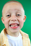 Kid missing tooth Stock Photography