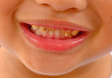 Kid patient open mouth showing caries teeth decay Royalty Free Stock Photos