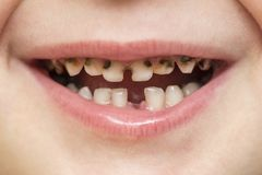Kid patient open mouth showing cavities teeth decay. Close up of unhealthy baby teeth. Dental medicine and healthcare - human. Patient open mouth showing caries stock image