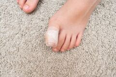 Free Kid Teenager Bare Foot With A Bandage On A Toe, Wounded Injured Toe Or Ingrown Nail First Aid Stock Image - 176578141