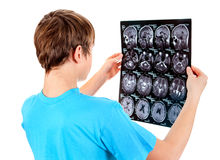 Kid with Tomography. Kid holding x-ray scan on the White Background Stock Images