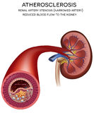 Kidney artery disease Royalty Free Stock Images