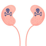 Kidney Cancer Stock Images