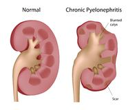 Kidney Chronic pyelonephritis Stock Photography