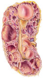 Kidney - Polycystic  Kidney Disease Royalty Free Stock Image